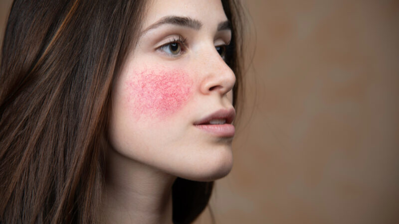 Beauty Tips 3 easy Way To Use At Home To Relax Your Irritated Skin And Redness