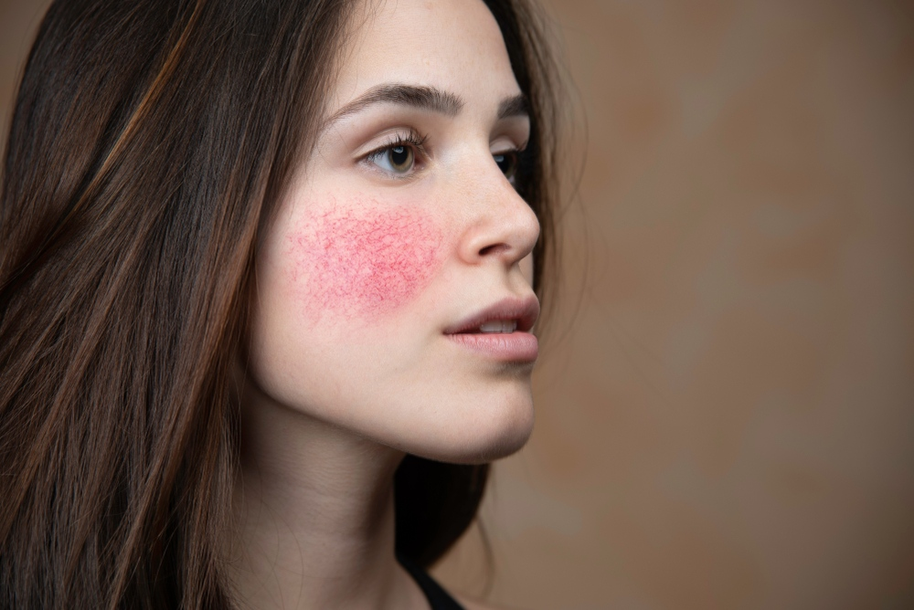 Skin Diseases Problem: 3 Easy Way To Relax Your Irritated Skin And Redness
