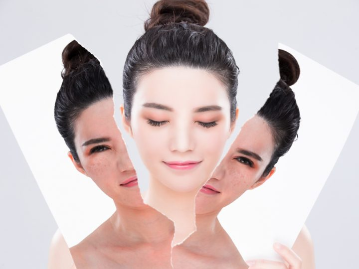 Do skin whitening? Here's what a Dermatologist has to say