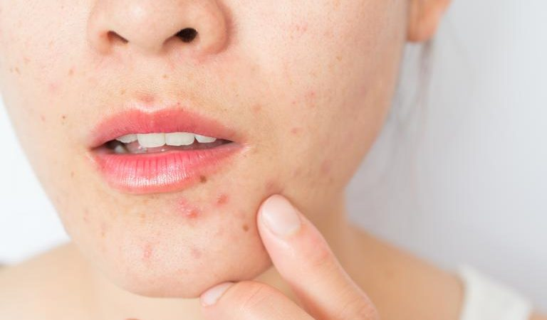 5 Home Remedies To Help You Get Rid of Pimples Permanently