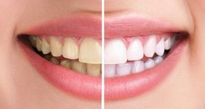 Did You Know Dental Whitening Is Possible At Home