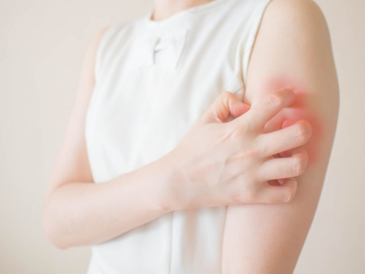 How to cure fungal infection on skin