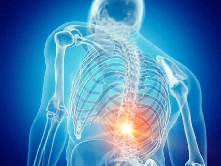 Lower Back Pain Causes, Symptoms, Diagnosis, and Treatment